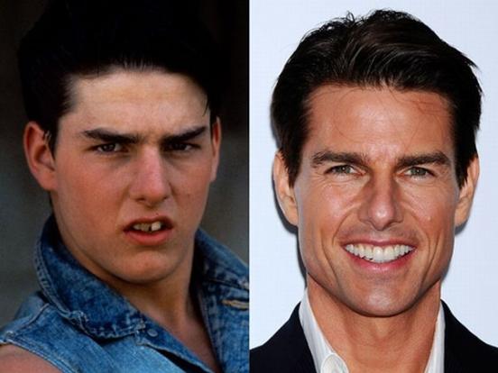 Зубы как у звёзд. Том Круз до и после